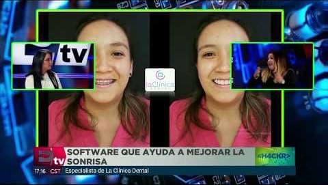 Diseño de Sonrisa en Excelsior TV | La Clínica Dental