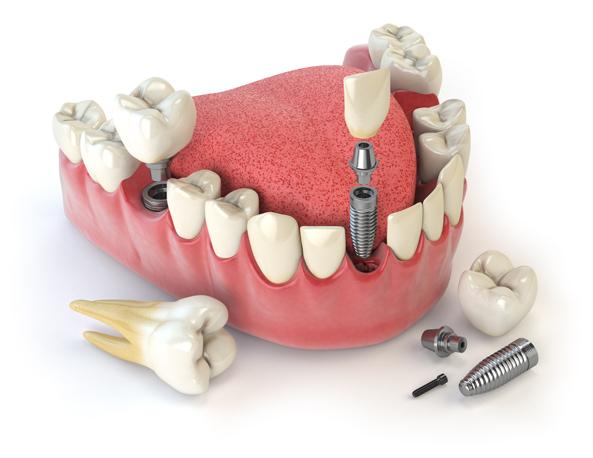 Promociones en implantes dentales